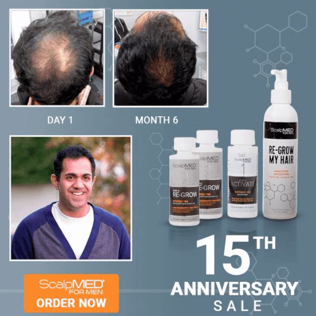 scalpmed hair regrowth system coupon